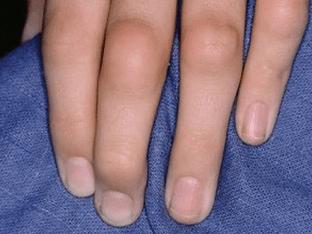 Почему ревматоидный артрит возникает у детей, чем лечить