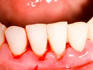 Что делать если кровоточат десны при чистке зубов