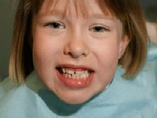 Неправильный прикус у ребенка, что делать
