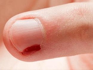 Заусенцы на пальцах рук: чем лечить