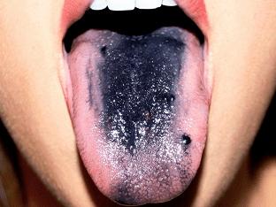 Причины черного налета на языке у взрослых