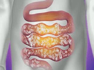 Какие продукты питания вызывают газообразование