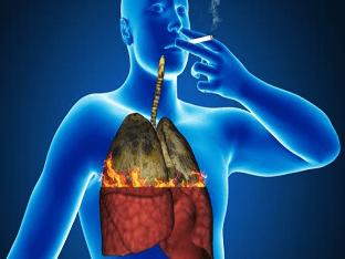 Очищение легких и бронхов после отказа от курения