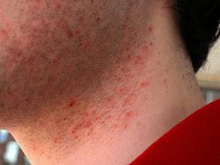 Почему появляется раздражение после бритья