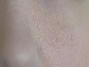 Почему шелушится кожа на спине