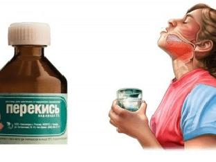 Полезно ли полоскание горла перекисью водорода