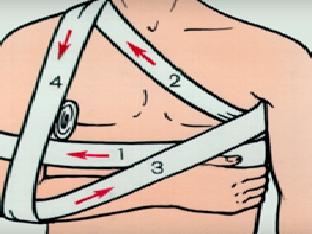 Наложение повязки Дезо на плечевой сустав