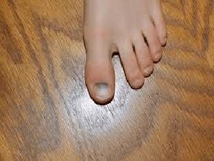 Ушиб пальца на ноге: что делать и как лечить