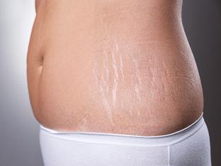 Как убрать растяжки после родов