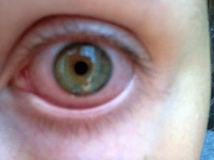 Из-за чего глаз красный, болит и слезится