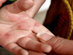 Вирусная пузырчатка у детей: симптомы и лечение