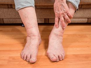 Отек ног у пожилых людей в щиколотках и стопах - как лечить