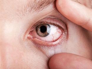 Красные белки глаз: причины и что делать при постоянном покраснении и воспалении глазного яблока?