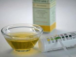Почему повышена глюкоза в моче и как лечить недуг
