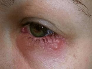 Симптомы герпеса на глазу и методы лечения