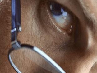 Глаукома глаза: что это такое, что нельзя делать