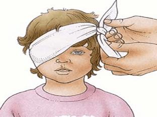 Глазные повязки - виды, способы наложения