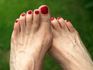 Как убрать косточки на ногах без операции