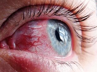 Воспаление глаз - чем снять в домашних условиях