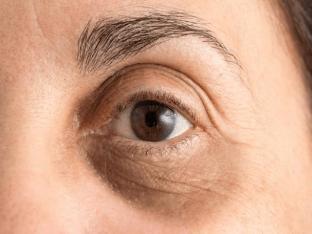 Темные круги под глазами: причины, лечение