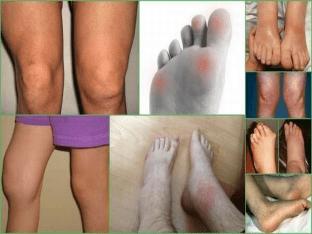 Что такое ревматизм ног: признаки и лечение у детей и взрослых