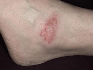 Экзема на ногах - лечение в домашних условиях, причины заболевания