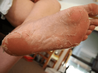 Причины сухости, шелушения и зуда кожи ног