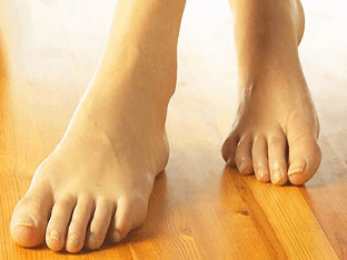 Что такое подагра на ногах и как ее лечить
