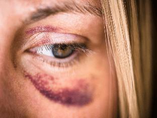 Синяк под глазом после удара. Как быстрее убрать синяк