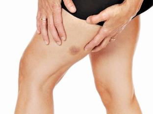 Синяки на ногах без причины, как лечить