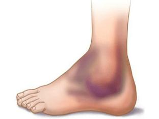 Ушибла ногу - что делать? Как отличить ушиб от перелома