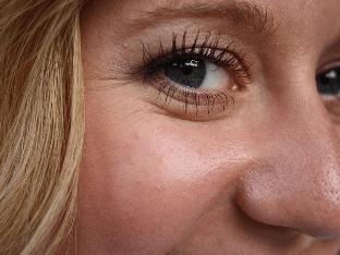 Эффективные способы устранения морщин возле глаз