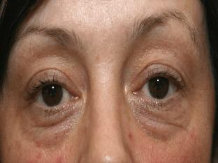 Грыжи под глазами: причины появления, методы удаления