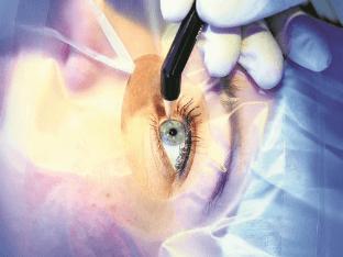 Как делают лазерную операцию на глаза?