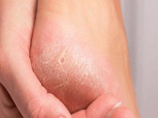 Как вывести сухие мозоли на ногах в домашних условиях