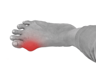 Косточка на большом пальце ноги - симптомы причины и лечение в домашних условиях