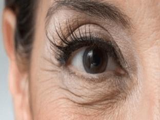 Морщины вокруг глаз - причины, диагностика и лечение
