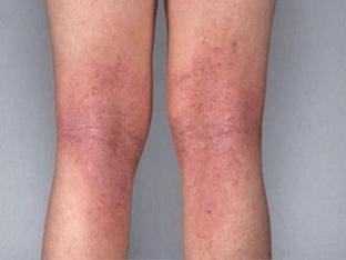 Пятна на ногах, как один из симптомов сосудистых заболеваний