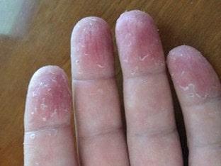 Что делать, если облазит кожа на пальцах рук