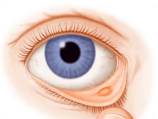 Лечение халязиона на глазу, причины его появления