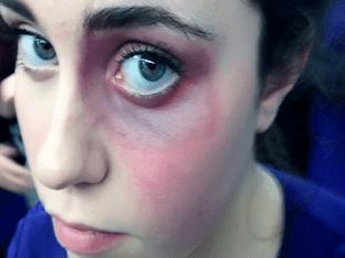 Что делать, если под глазом появился синяк