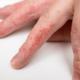 Какие средства применяют при лечении мокнущей экземы?