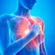 Рак сердца: что делать, как лечить?