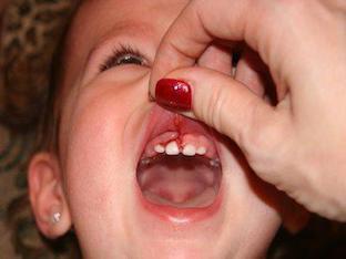Чем и как лечить гингивит у ребенка