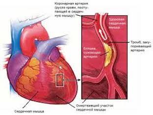Инфаркт миокарда: что это такое