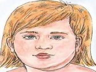 Болезнь свинка у детей: как проявляется и какие ее последствия