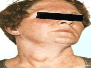 Как сигнализирует о себе зоб щитовидной железы